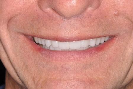Baines Dental Wellness in Springfield, IL